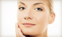45-Minute Face-Lift Treatment with Optional Under-Eye Treatment at Speranzi Facial Spa (Up to 63% Off)