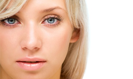 Eyelid Lift for Upper, Lower or Both Eyelids from Dr. John Nassif at Eye Associates of SW Florida (Up to 56% Off)
