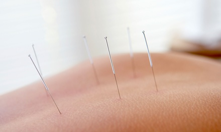 One or Three Acupuncture Sessions & Herbal Consultations at Lake Merritt Community Acupuncture (Up to 78% Off)
