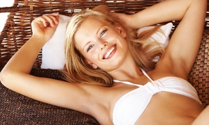 3 Or 6 Laser Hair-removal Treatments Or 1 Year Of Unlimited Laser Hair Removal At Aura Skin Spa (up To 75% Off)