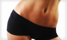 6 or 10 Lipo-Laser Treatments with Body-Composition Analysis and Exam at Springs Family Wellness (Up to 84% Off)