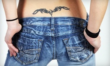 "One Laser Tattoo-Removal Treatment for a 2""x2"", 4""x4"", or 6""x6"" Area at NewSkin Tattoo Removal (Up to 71% Off)"