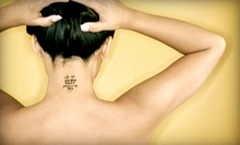 One Laser Tattoo-Removal Session on an Area Up to 2 or 4 Square Inches at Zapatat (Up to 53% Off)