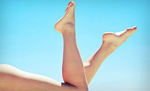 $99 for One Sclerotherapy or Laser Vein Treatment at Restoration Vein Center in Birmingham (Up to $250 Value)