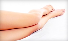 Four Laser Hair-Removal Treatments on a Small, Medium, or Large Area at Advanced Laser Medical Center (Up to 84% Off)