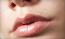 $579 for 2 cc of Restylane at Rejuv ($1,200 Value)