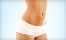 Two or Four VelaShape II Body-Contouring Sessions at Toronto Weight Loss and Wellness Clinic (Up to 82% Off)