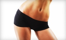 $459 for Six i-Lipo Body- or Skin-Contouring Treatments at Imagine Spa & Fitness ($2,250 Value)