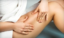 $275 for Two Noninvasive Exilis RF Liposuction Sessions and a Consultation at Cosmetic Laser Solutions ($840 Value)
