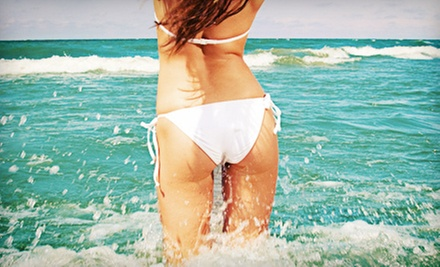 $99 for Six VelaShape Cellulite-Reduction Treatments at Esthetique ($1,494 Value)