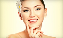 One or Three IPL Photorejuvenation Facial Treatments at Club Medspa (80% Off)
