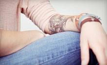 One, Three, or Six Laser Tattoo-Removal Treatments at Skin Perfect (Up to 86% Off)