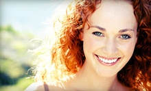 One or Two Teeth-Whitening Treatments at Whitehall Health Centre (Up to 80% Off)
