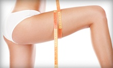 Three or Six CelluSleek Cellulite-Reduction Treatments at The Vanity Center (Up to 85% Off)