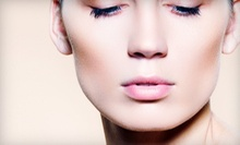One, Two, or Three IPL Photofacials for the Full Face at Spa Catalina (Up to 57% Off)
