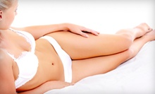 Two, Four, or Six Harmony XL Laser Skin-Tightening, Body-Contouring Treatments at Beautify at AMS (Up to 76% Off)