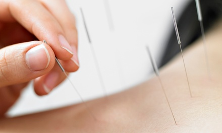 Bio-Feedback Scan and One, Three, or Six Acupuncture Treatments from Rebecca Wendler L.Ac. (Up to 58% Off)