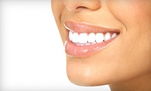 One or Two 15-Minute Teeth-Whitening Sessions at Smile Labs (Up to 52% Off)