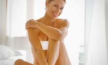Six Laser Hair-Removal Sessions on Small, Medium, Large, or Extra Large Area at Elite Aesthetics Medspa (Up to 81% Off)