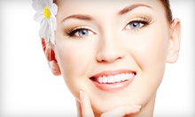 One, Four, or Eight Microcurrent Face-Lift Treatments at Lanata Advanced Skin Care (Up to 61% Off)