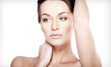 One, Two, or Three IPL Photofacial Treatments at Evropa Holistic Studio Spa (Up to 61% Off)