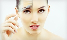 $145 for 20 Units of Botox at ellehomme Holistic Med Spa ($320 Value)