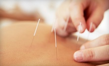 One or Three 60-Minute Acupuncture Sessions at Dr. TCM Integrated Health Centre (Up to 63% Off)