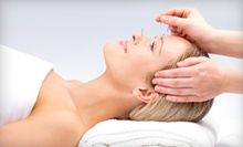 $25 for an Acupuncture Treatment at Ohio Wholistic Acupuncture ($63 Value)