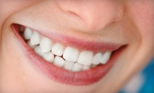 Dental Package with Exam, X-rays, and Cleaning or Teeth Whitening at Baker Cosmetic & Family Dentistry (Up to 90% Off)