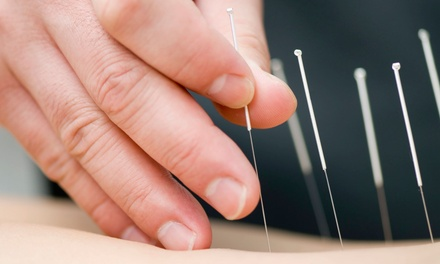 One or Three Acupuncture Sessions with Initial Consultation at Orange Acupuncture (Up to 66% Off)