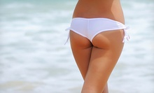 Three or Five Cellulite-Reducing Treatments at Terrace Retreat at the Hilton (Up to 67% Off)
