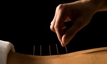 One or Three Acupuncture Sessions and One Body Composition Analysis at Back-Health Chiropractic (Up to 50% Off)