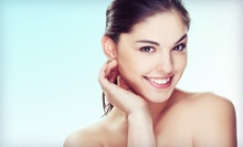 $99 for a Photofacial at V Kare ($450 Value)