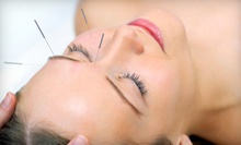 Acupuncture Package with One or Three Treatments at Blue Lotus Acupuncture Clinic in Brookfield (Up to 74% Off)