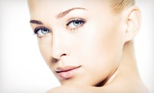 One, Three, or Six Microdermabrasion Treatments with Rejuvenating Masks at Ki Aesthetics (Up to 64% Off)