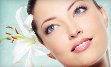 One or Three Microdermabrasion Treatments at Aurora Salon & Spa in Tewksbury (Up to 59% Off)