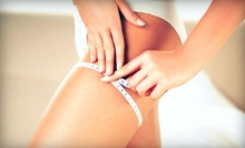 Body-Slimming Package at Marosé Spa and Wellness (Up to 81% Off). Three Options Available.