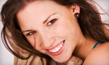 One Teeth-Whitening Treatment or One Year of Unlimited Treatments at Pro White Teeth Whitening (Up to 87% Off)
