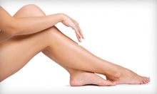 Two or Four 30-Minute Sessions of Spider-Vein Removal at Namaste Laser and Medspa (Up to 86% Off) 