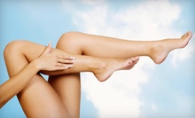 $119 for Two Spider-Vein Laser Treatments at Celebrity Laser Care ($300 Value)