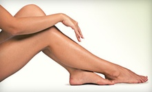 Six Laser Hair-Removal Treatments at Soft Touch Skin Solutions in Brooklyn (Up to 93% Off)
