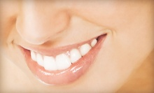 Dental Checkup or In-Office Teeth-Whitening Treatment at Covina Smile (Up to 87% Off)
