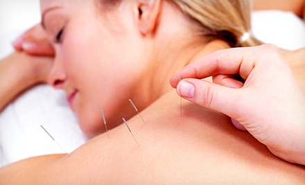 One Acupuncture Treatment or Five Acupuncture Face-Lifts at Woodlands Integrative Medicine Associates (Up to 72% Off)