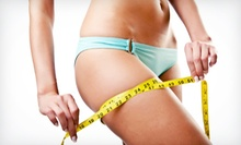 Two, Four, or Six Lipo-Light Body-Contouring Treatments at Lipofit, LLC at Oceanside Wellness Center (72% Off)