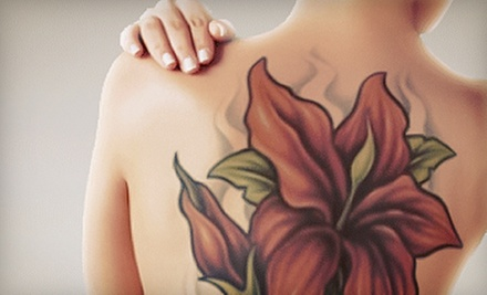 One, Two, or Three Laser Tattoo-Removal Treatments for an Area Up to 9 Square Inches at Clarity MedSpa (Up to 81% Off)