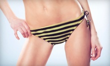 One or Three Brazilian or Bikini Waxes, or One Back Wax at Solutions Wellness (Up to 65% Off)