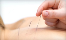 Acupuncture Consultation with One or Three Treatments at Nyack Integrated Health Services (Up to 86% Off)