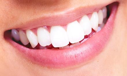 Dental Marfim — Telheiras: aparelho metálico ou estético com seis consultas de revisão desde 79€