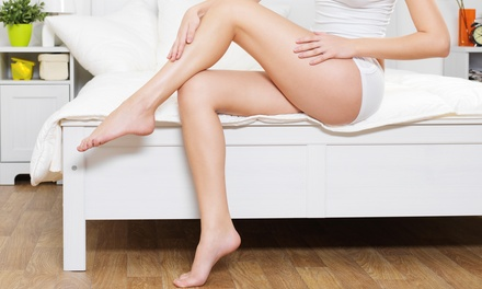 2 or 4 VeinGogh Spider-Vein Removal Treatments with Consultation at Winter Park Vein Specialists (Up to 79% Off)