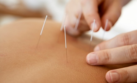 One or Three Acupuncture Sessions with Consultation at Pinnacle Acupuncture (Up to 94% Off)